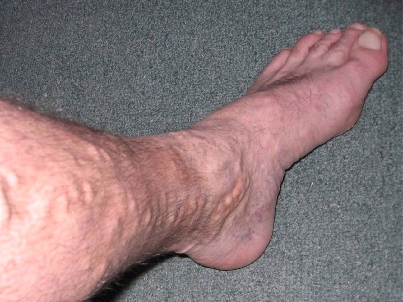 Żylaki na nogach