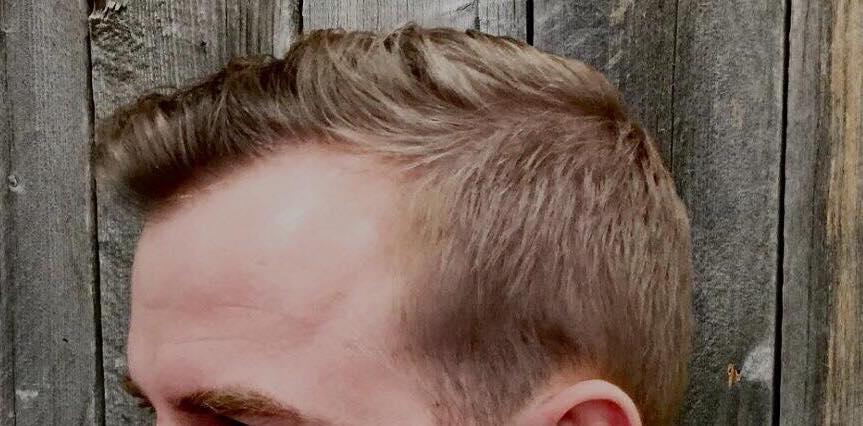 Efekty mojej kuracji na łysienie